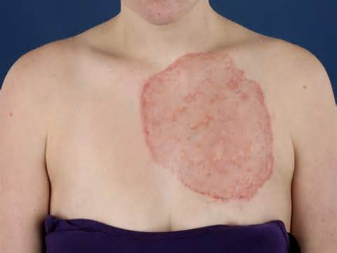 Ringworm Ringworm And Homeopathy Treating Ringworm