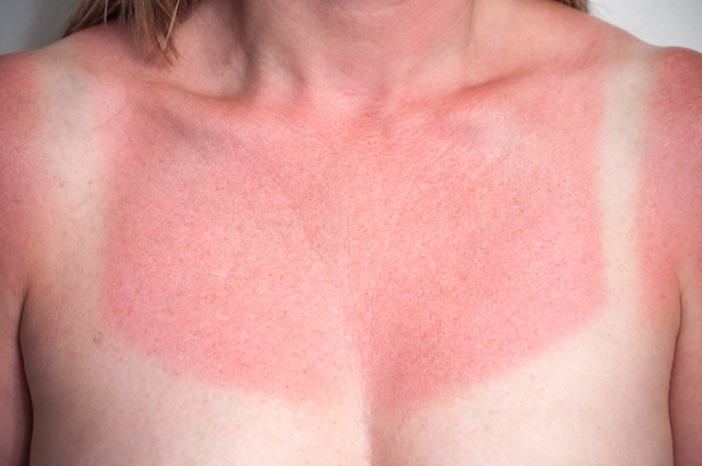 sunburns skin and medical attention But severe sunburn needs medical attention  severe: skin redness and  blistering pain and tingling swelling headache nausea fever and chills  dizziness.