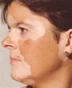 Vitiligo, Homeopathy for Vitiligo, Vitiligo Remedies
